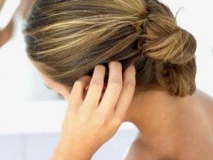 Dermatite Seborroica: Rimedi, Cause e Sintomi