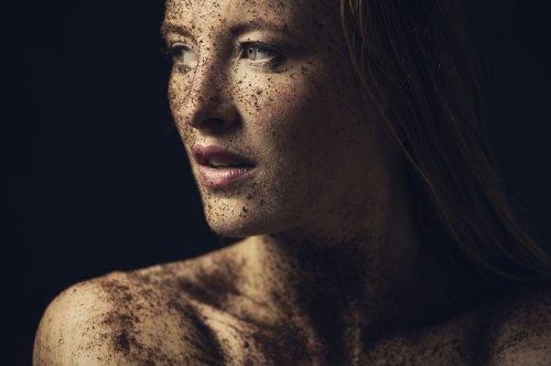 Psoriasi: il metodo di pulizia naturale per ritrovare il benessere